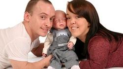 Lekarze chcieli zabić ich dziecko, bo będzie takie jak oni - miniaturka