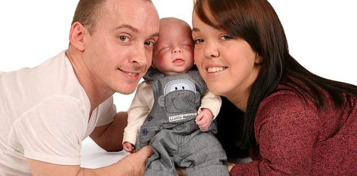 Lekarze chcieli zabić ich dziecko, bo będzie takie jak oni - zdjęcie