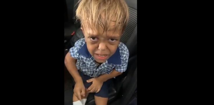 Dramatyczne nagranie 9-latka cierpiącego na karłowatość - zdjęcie
