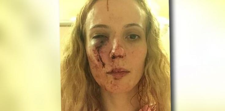 Atak w Anglii. Młodzież brutalnie pobiła kobietę, wzięli ją za Polkę - zdjęcie