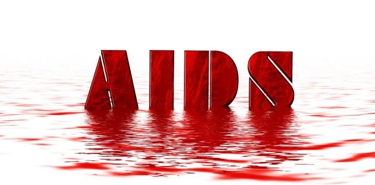 TYLKO U NAS! Adam Chmielewski: Ukryta epidemia AIDS w Polsce - zdjęcie