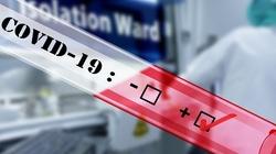 Spadek liczby zakażeń: Potwierdzono 15 178 nowych infekcji - miniaturka