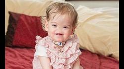 Urodziła się bez nosa. Rodzice nie chcieli aborcji. Proteza z drukarki 3D! - miniaturka