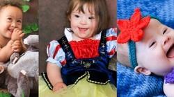 Bajeczne maluchy! Wyjątkowa sesja dzieci z zespołem Downa - miniaturka