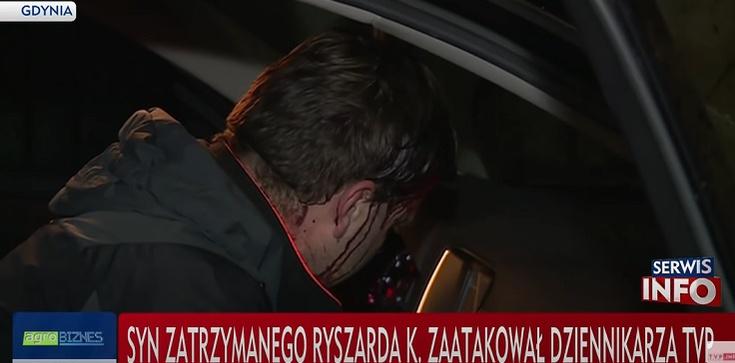 Jest akt oskarżenie przeciwko Aleksandrowi K., synowi znanego biznesmena za brutalne pobicie dziennikarza TVP - zdjęcie