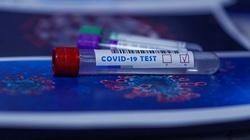 U 11-letniego chłopca z Izraela wykryto nowy wariant koronawirusa - miniaturka