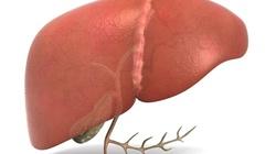 Detoksykacja wątroby, czyli dieta ODTRUWAJĄCA - miniaturka