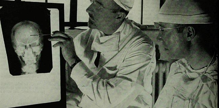 Słaba argumentacja Arłukowicza: Nobel nie tylko za in vitro, także za lobotomię - zdjęcie