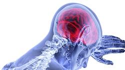 Prof. Coimbra: Śmierć mózgowa nie istnieje. A międzynarodowy handel organami przez mafie - tak - miniaturka