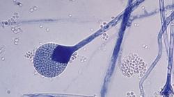 Oman: czarny grzyb u zakażonych covid-19 - miniaturka
