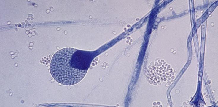 Oman: czarny grzyb u zakażonych covid-19 - zdjęcie