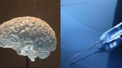 Transplantacja narządów, śmierć mózgowa i równia pochyła - miniaturka