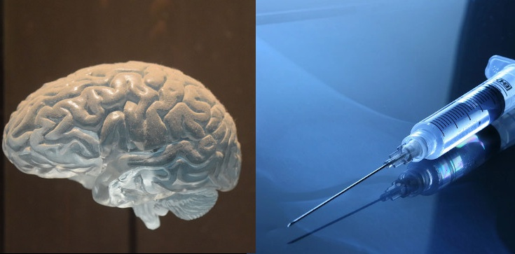 Transplantacja narządów, śmierć mózgowa i równia pochyła - zdjęcie