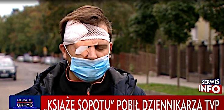 Kasta basta. ,,Mały Książę Trójmiasta'' nie trafi do aresztu za dotkliwe pobicie operatora TVP - zdjęcie