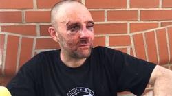 We Wrocławiu poważnie pobito lewicowca za poparcie LGBT - miniaturka