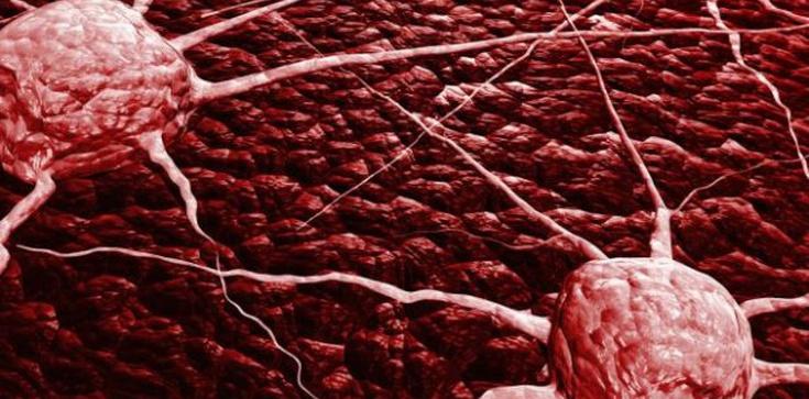 Oto prawdziwe przyczyny powstawania nowotworów! - zdjęcie